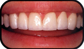 Southridge-Dental-porcelain-veneers-henderson-nevada-89074
