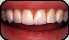 Southridge-Dental-Henderson-NV-Dentist-Veneers-89074