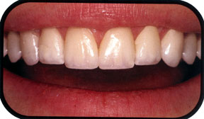 Henderson-Nevada-Veneers-Dentistry-Southridge-Dental