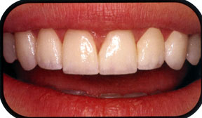 Southridge-Dental-Porcelain-Veneers-in-Henderson-NV-89074
