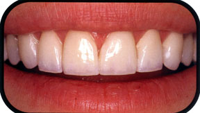 Southridge-Dental-Veneers-in-Henderson-NV-89074