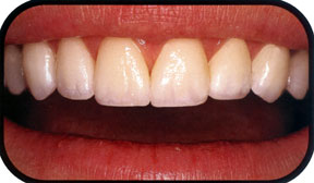 Southridge-Dental-Porcelain-Veneers-Henderson-Cosmetic-Dentistry
