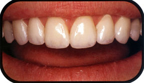 Southridge-Dental-Henderson-NV-Veneers-Dentistry