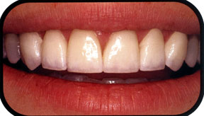 Southridge-Dental-Porcelain-Veneers-Dentist-in-Henderson-NV-89074